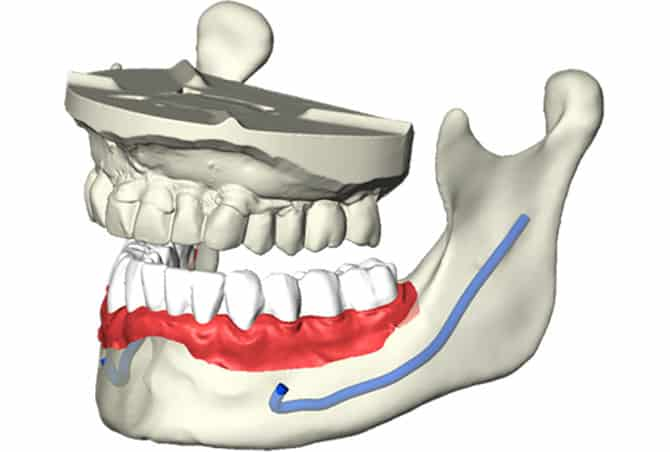 3D-Planung für Zahnimplantate intuitiv und anschaulich