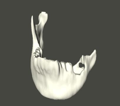 Anatomischer Soll-Ist-Vergleich