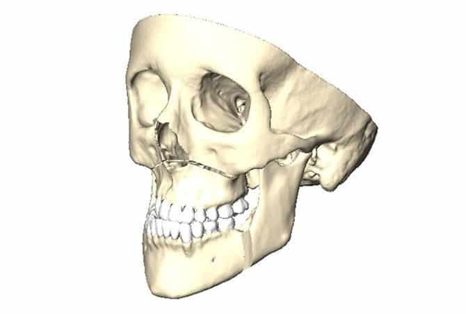 Plan bone rearrangements intuitively in 3D