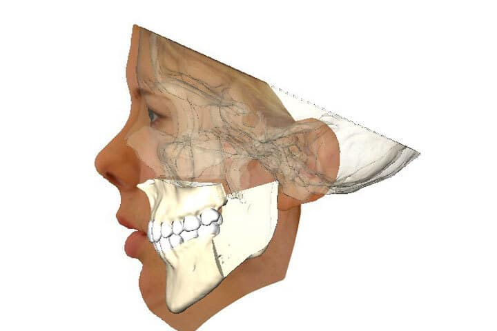 Evaluate tooth position and esthetics