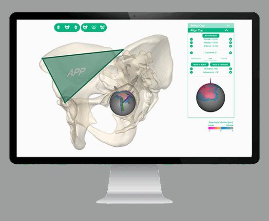 Auswahl und Design von Prothesen und Orthesen für jeden Defekt