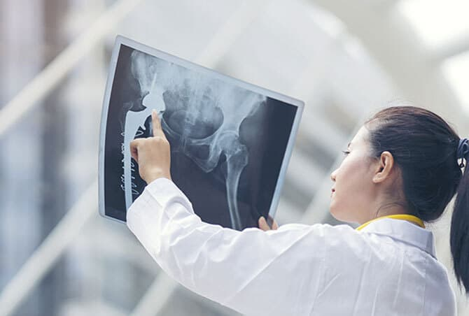 3D therapy planning based on 2D X-ray images