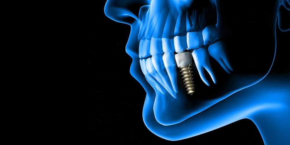 3D-Planung für Zahnimplantate