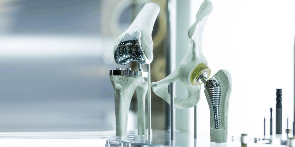 Optimale Implantatsortimente