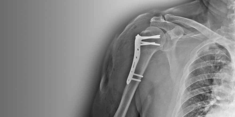 Passgenaue Implantate zur Osteosynthese